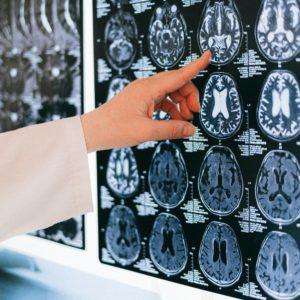 Neurologie et génétique